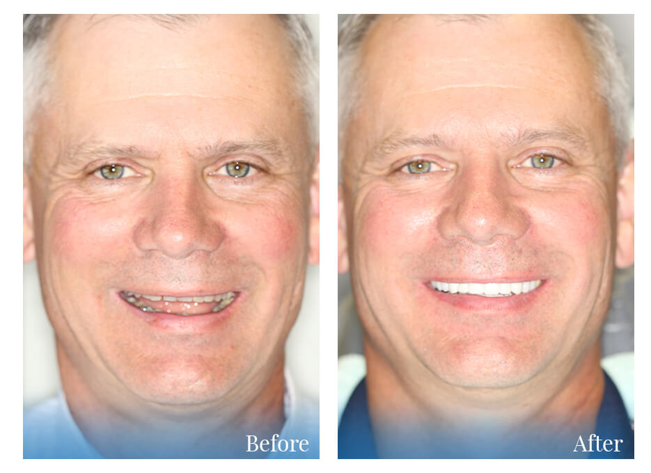 Man who received cosmetic dentistry - before and after