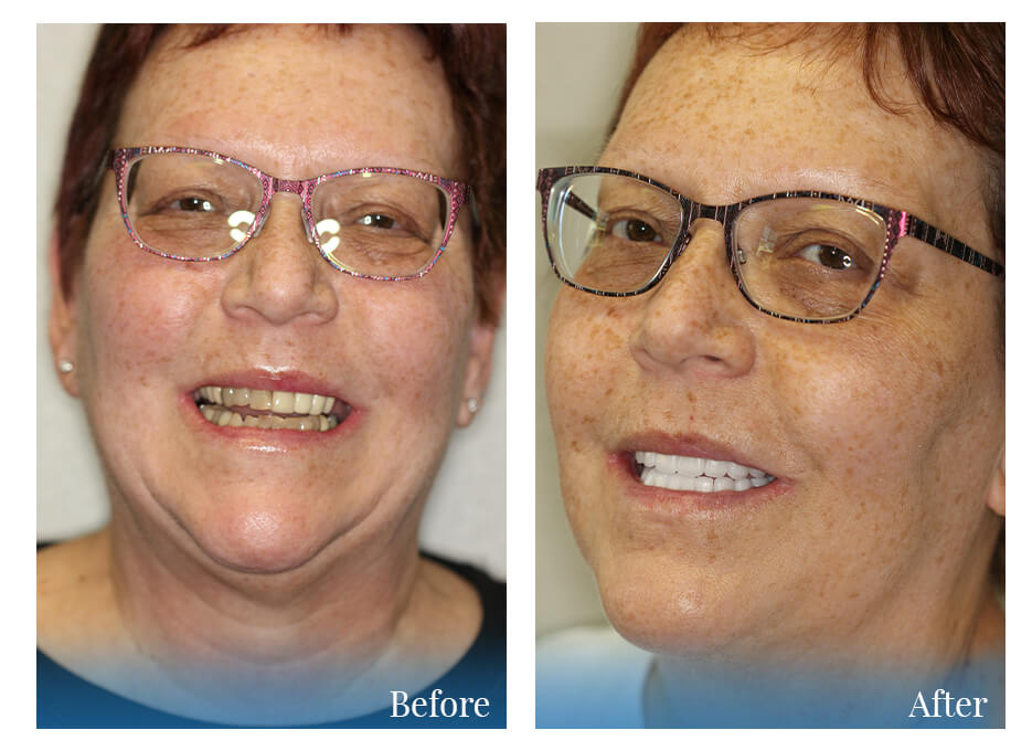 Woman who received cosmetic dentistry - before and after