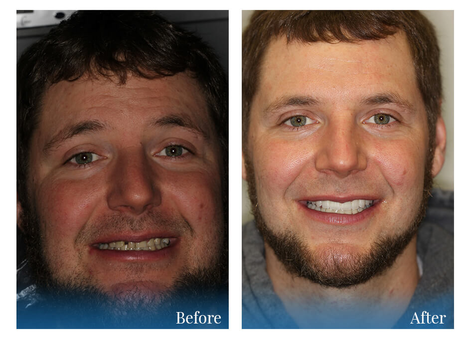Before and After photo who had cosmetic dentistry work