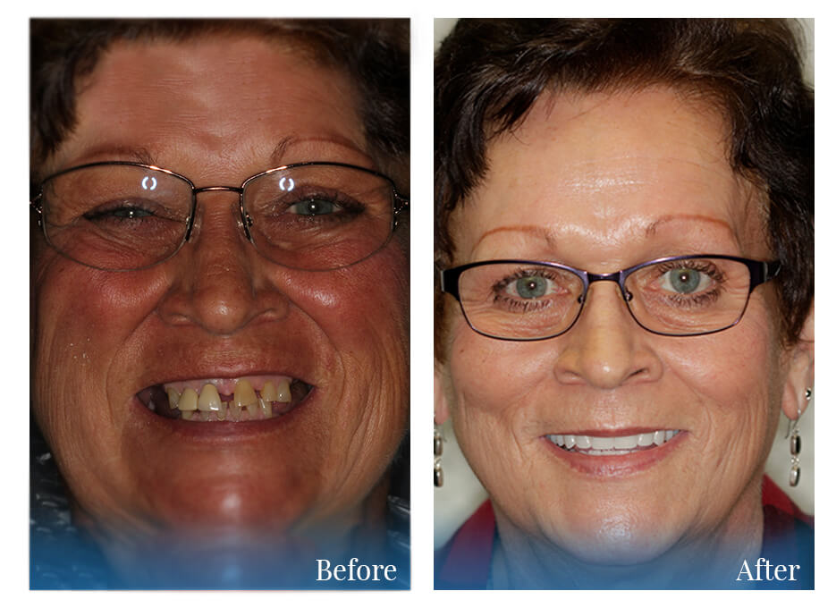 Before and After photo of woman with cosmetic dentistry work