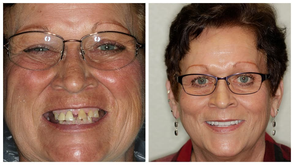 Actual dentures patients in Bismarck, ND