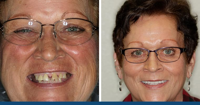 Actual before and after patient with custom dentures